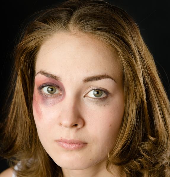 Domestic Violence Program